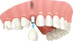 Diş kökünü taklit eder