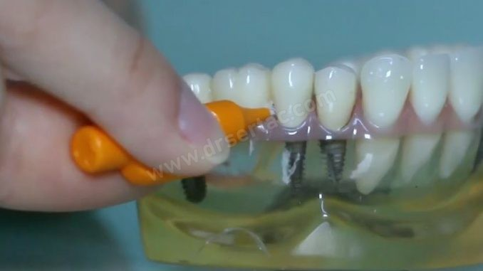 implant arayüz temizliği