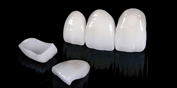 Lamina diş kaplama ile ön diş estetiği