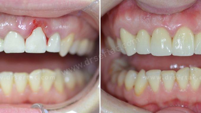 diş estetiği örnek