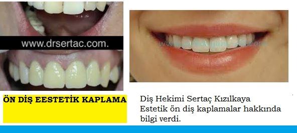 Ön diş estetik diş kaplama