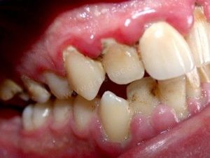 diş eti iltahabı diş taşı