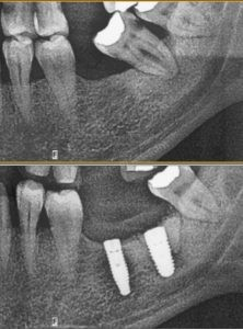 Yükleme yapılmış iki implant görüyorsunuz