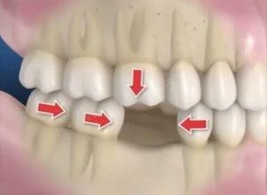 Çekilen diş etrafındaki diğer dişlerin yer değiştirmesi
